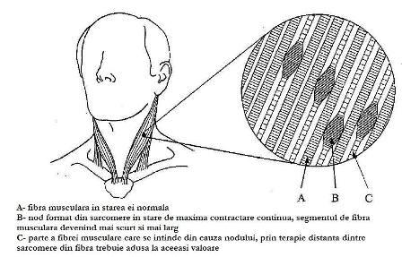 terapia-punctelor-dureroase-desen-fibre-musculare